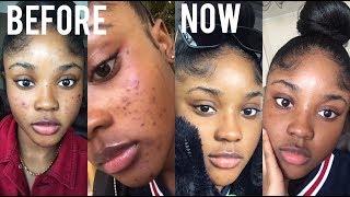 HOW I CLEARED UP MY ACNE & SCARS QUICKLY! SKINCARE| KAISERCOBY