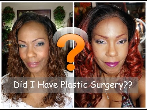 What Plastic Surgery Have I Had?