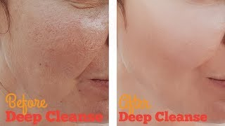 how to Deep Clean Facial Pores with Home Remedies - How to Deep Clean Your Face