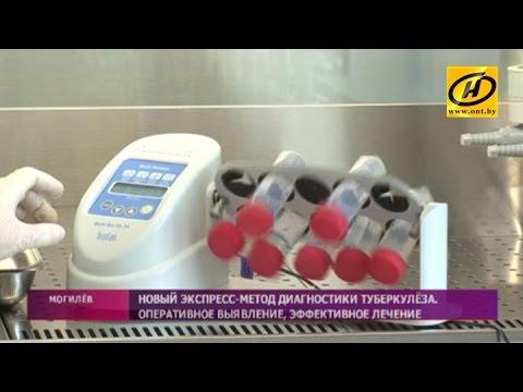 Экспресс-метод диагностики туберкулёза появился у могилёвских медиков