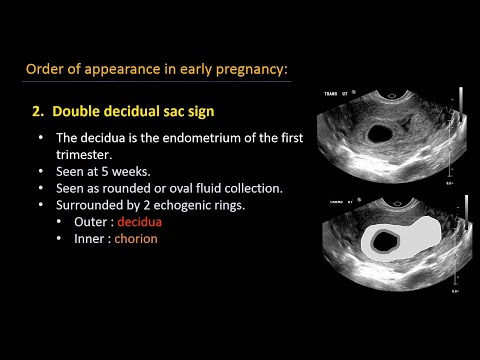 Ultrasound of normal early pregnancy