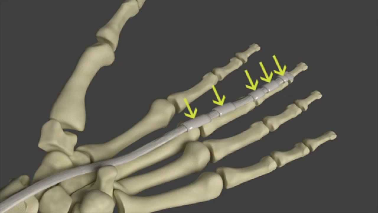 Trigger Finger: Symptoms and Anatomy - YouTube