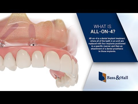 What is All-on-4? | Bass & Hall Dental Implant & Periodontal Partners