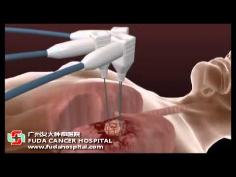 Liệu pháp mới trị liệu ung thư phổi bằng phẫu thuật lanh ( Cryosurgical Ablation CSA )