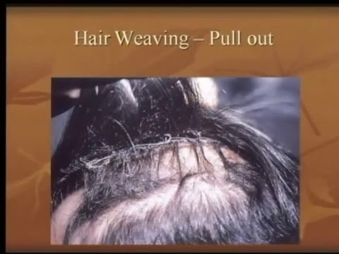 Hair weaving treatment its side effect youtube hair weaving treatment its side effect pmusecretfo Gallery