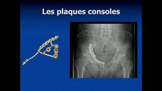 Fracture de l'acetabulum sur os fragile