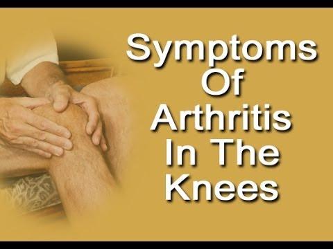 Symptoms Of Arthritis In Knees