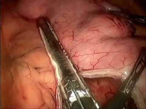 Operacion de estomago para adelgazar