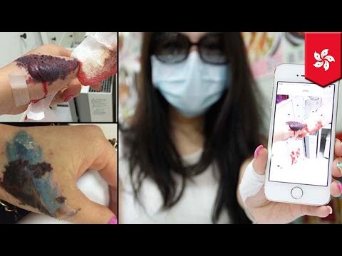 Tattoo removal gone wrong: Hong Kong woman's hand maimed by laser procedure