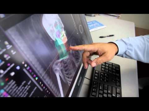 TomoTherapy Radiation Treatment System At Swedish