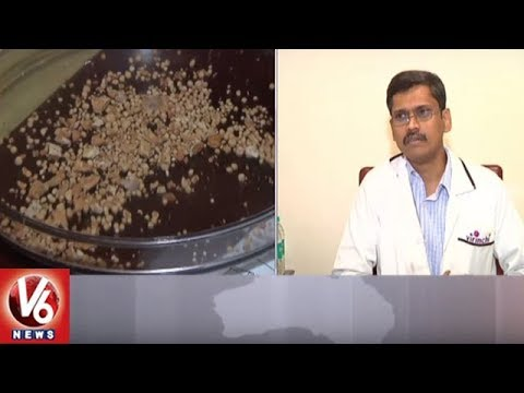 Hyderabad Doctors Remove 700 Stones Found In Somalia National's Kidney | V6 News