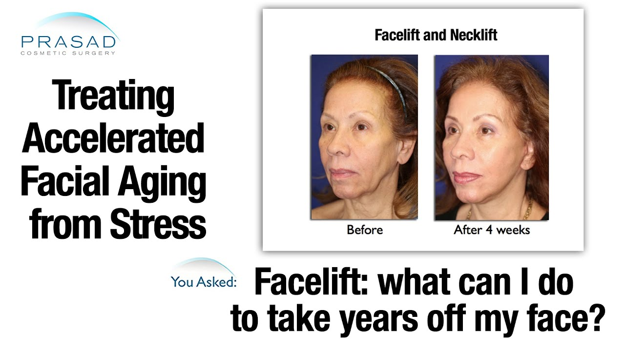 stress aging