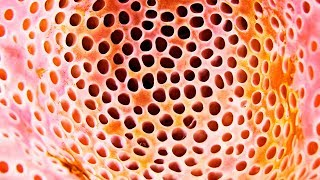 TEST FOR TRIPOPHOBIA YOU DO NOT TRY NOT GO! THIS IS THE FULLEST GESTURE!
