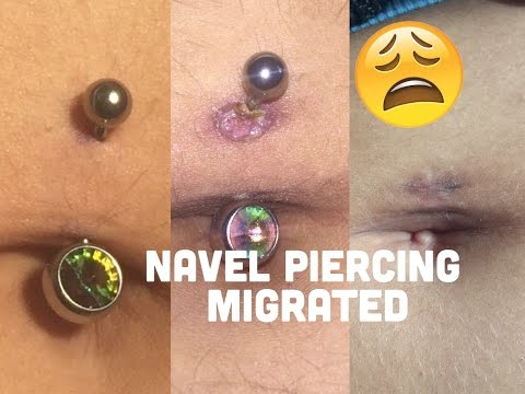 My Navel Piercing Was Migrating Didnt Know