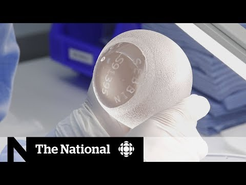Canadian doctors sounding the alarm over Biocell breast implants | The Implant Files thumbnail