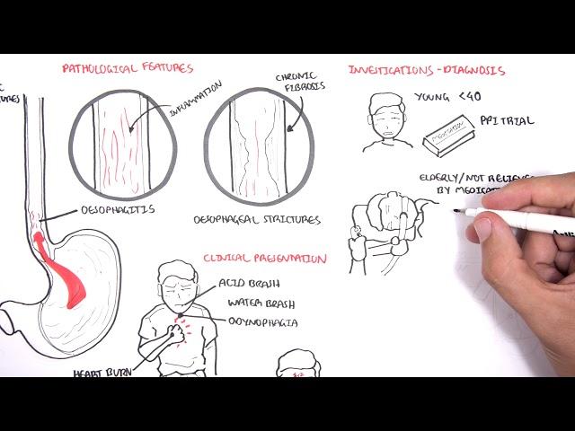 GORD (GERD) Gastro Oesophageal Reflux Disease  - Overview pathophysiology, treatment