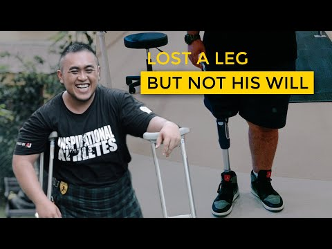 Losing A Leg But Not His Will