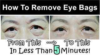 How To Get Rid of & Remove Eye Bags (Instantly Ageless Puffy Eye Bag Removal)