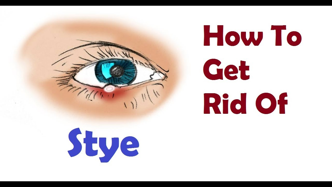 blepharitis treatment at home in hindi