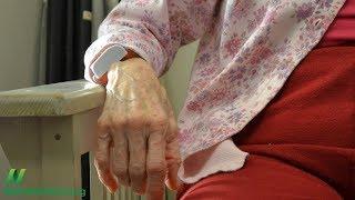 Snížením příjmu glykotoxinu k prevenci Alzheimerovy choroby