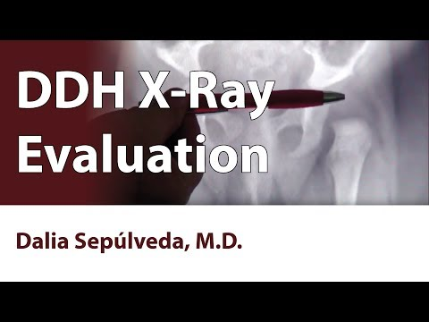 DDH X-Ray Evaluation