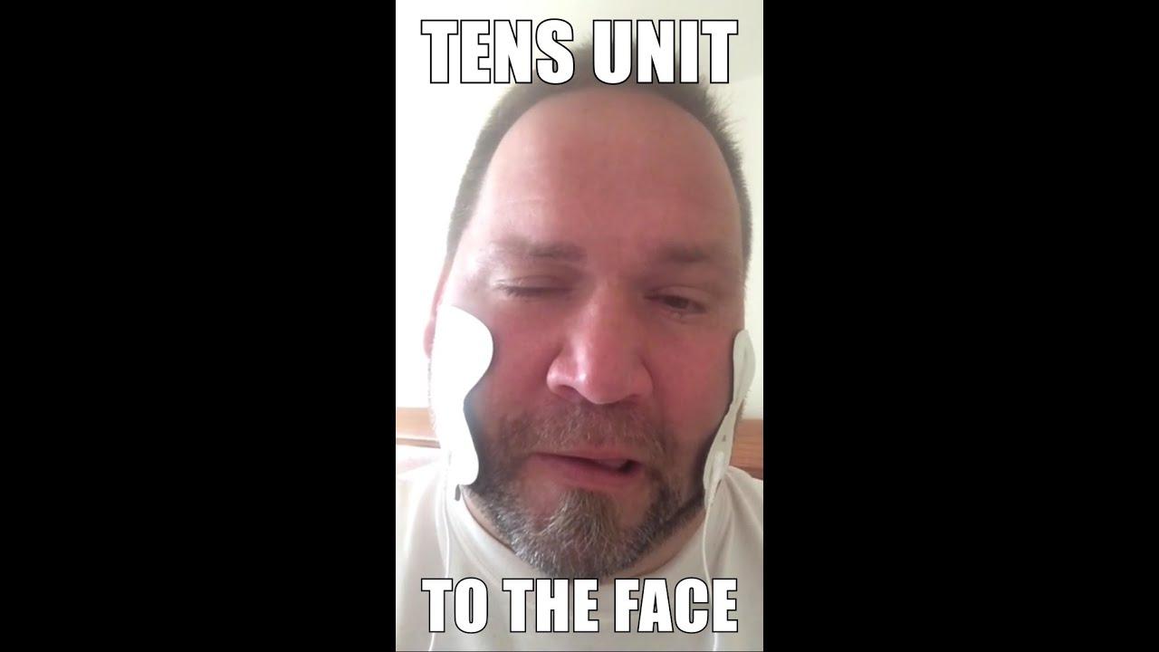 unit facial tens