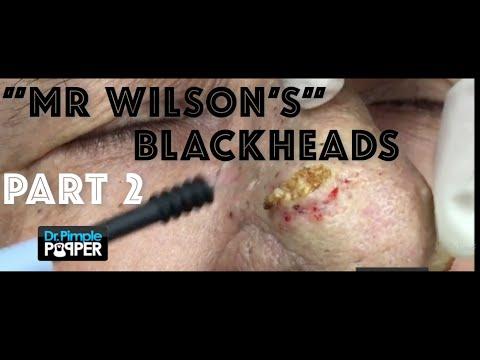 "Recap  ""Mr Wilson's"" Blackheads & Rhinophyma PART 2"