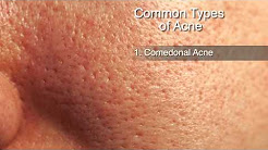hqdefault - How Many Types Of Acne Is There