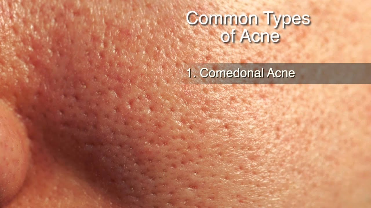 how to treat different types of acne - youtube, Human Body