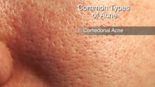 To of scars home acne remedy How get rid