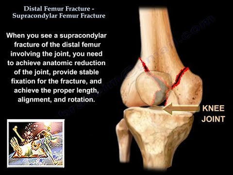Distal Femur Supracondylar Fracture - Everything You Need To Know ...