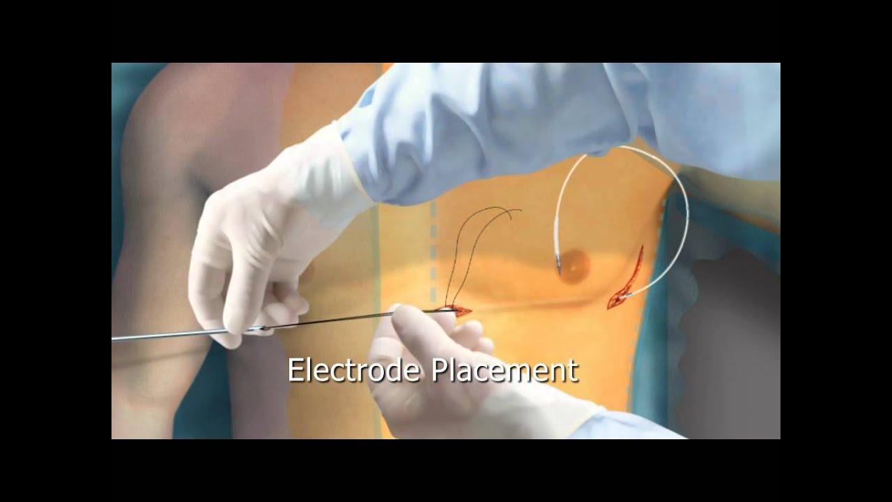 subcutaneous icd animation - arrhythmia org