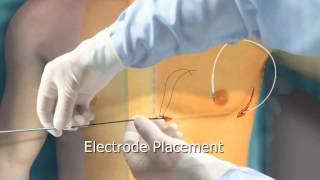 Subcutaneous ICD Animation - Arrhythmia.org