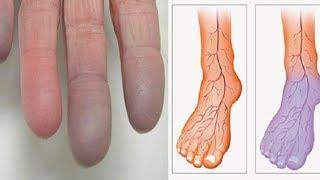 Schlechte Durchblutung in den Beinen? Diese natürliche Hausmittel helfen!