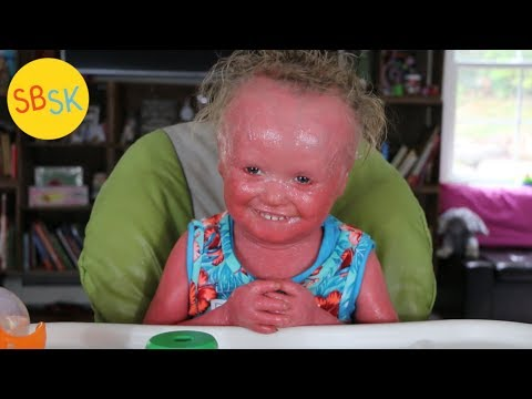 My Friend with Harlequin Ichthyosis (Skin that Grows Too Fast)