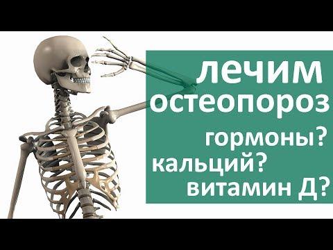 Остеопороз костей. 🌞 Какое лечение выбрать при остеопорозе костей. ЦЭЛТ