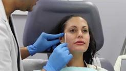 Facial Sculpting using Botox and Dermal Fillers (Juvederm, Voluma) by Dr. Shaun Patel in Miami