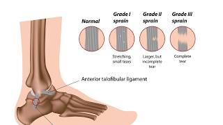 Sprain or tear, confusing condition