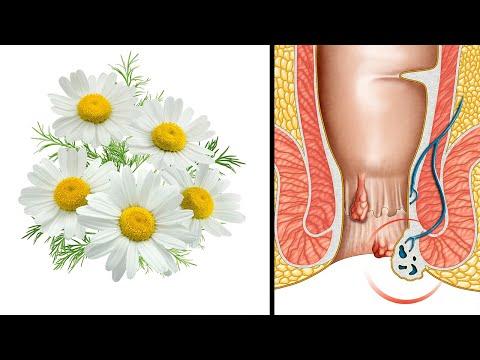 Hausmittel gegen Hämorrhoiden - Die besten natürlichen Heilmittel