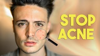 Stop Acne FAST! 5 Steps to beating acne FOREVER