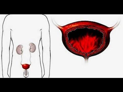 Как лечить энурез у взрослого Лечение болезней