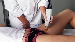 Laser Hair Removal - Permanently Remove Hair from Anywhere