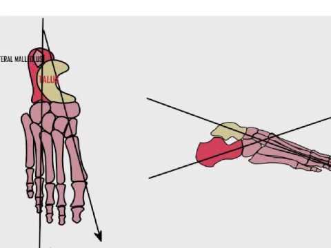 Club foot anatomy