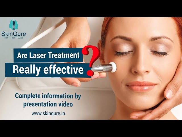 Are Laser Treatment Really Effective? |  SkinQure