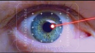 Lasik surgery pros and cons