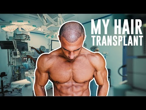 My Hair Loss Journey & FUE Transplant In London