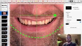 DSD. Digital Smile Design. Keynote In Russian