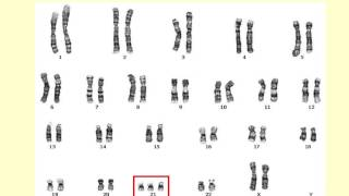 AS level. E.1. Chromosomes and the cell cycle Ms Cooper
