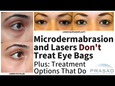 Why Microdermabrasion and Surface Laser Treatments Don't Address Eye Bags, and Options that Do