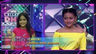 CANTIK! Before After Amanda, Sang Mama Sangat Bangga [DITINGGAL RABI] - New Kilau DMD (19/12)